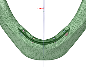 mandibular implant prosthesis - All-on-Four 3D model