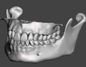 Maxillary and Mandibular dental models natural anatomical
