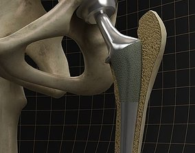3D Femoral prosthesis with complete skeleton and section