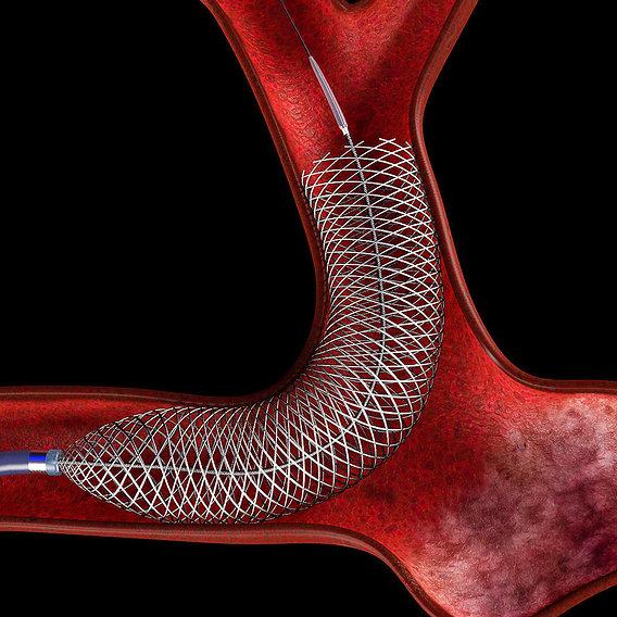 Flow diverter in aneurysm
