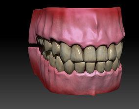 3D Gums and teeth