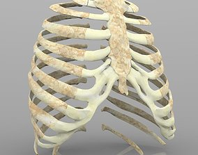 3D Rib Cage With Texture