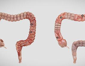 3D asset Ulcerative Colitis vs Crohn Disease