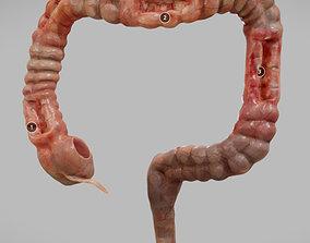 3D asset Crohns Disease