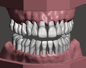 Maxillary and Mandibular dental models
