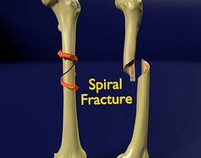 Spiral Fracture skeleton labelled femur 3D
