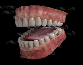 3D model Teeth Denture Upper and lower Jaw with gums and