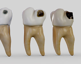 Tooth Decay Progression Dental Caries 3D model