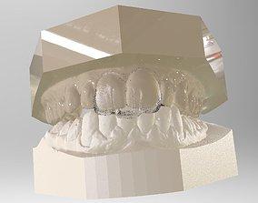 3D print model Digital Dental NTI Splint
