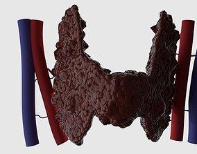Thyroid 3D
