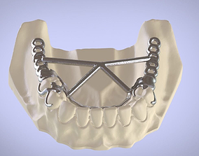 Digital 3D Removable Partial Denture