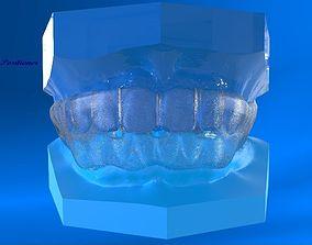 Digital Ortho Tooth Positioner 3D printable model