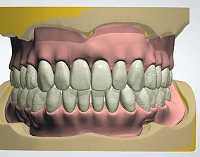 3D print model Digital full denture