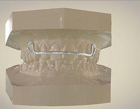 Digital Activator Appliance 3D print model splint