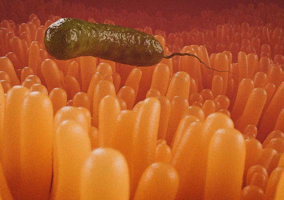 Cholera vibrio
