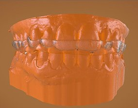 Digital Bite Raising Splint 3D printable model