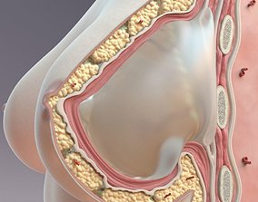 Breast Cross Section Implant 3D model