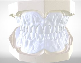 Digital Try-in Full Dentures for 3D printable model 1