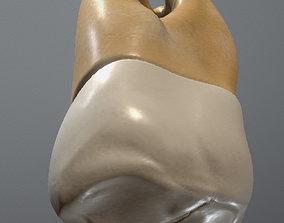 3D asset Maxillary Third Molar