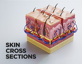 3D model Skin cross sections-damaged skin-cut skin- with 1