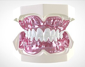 Digital Full Dentures for Gluedin 3D printable model 4