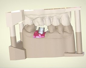Digital Dental Implant Model with Positioning Guide