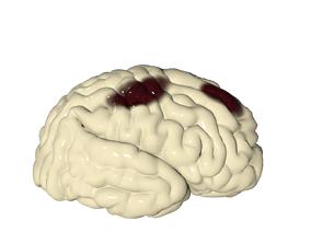 Injured Brain 3D asset realtime