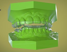 Digital Dental B Splints 3D printable model