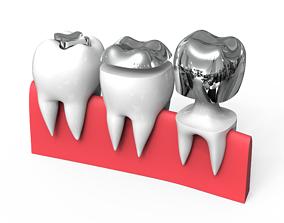 Teeth Cap 3D