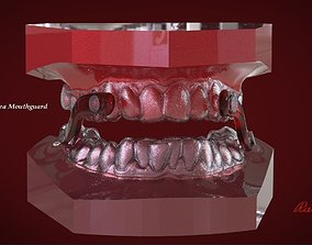 Digital Sleep Apnea Mouthguard 3D print model