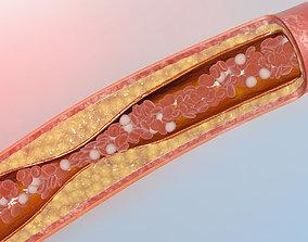 blocked blood vessel animation 3D model