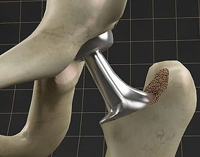 Femoral prosthesis femur and pelvic gilder 3D