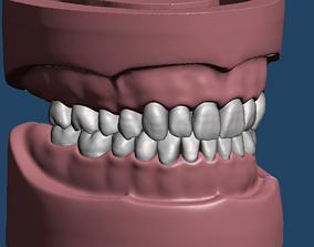 typodont Dental Sample model