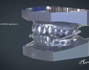 Digital Telescopic Herbst Appliance 3D print model