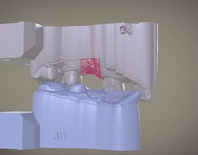 Digital Implant Model with Soft Tissue