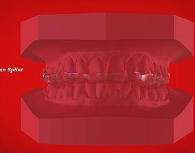 Digital Michigan Splint for 3D Printing dentistry