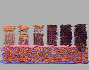 3D model Cervical cancer dysplasia CIN