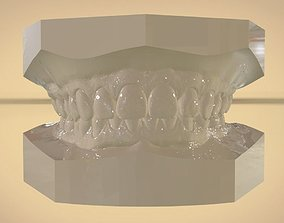 Digital Orthodontic Study Models with Virtual ABO
