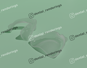 Custom impression trays for edentulous patients 3D