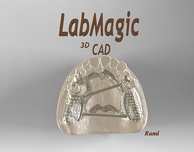 3D printable model Digital Removable Partial Denture