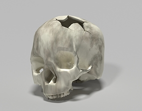 skeleton 3D print model Damaged skull