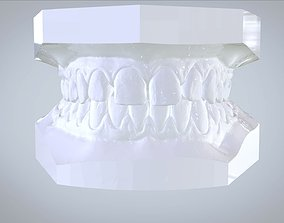 Orthodontic Planning Study Model 3dprint
