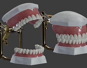 Dental Prosthesis 3D model