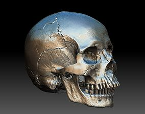 3D Human Skull and Jaw
