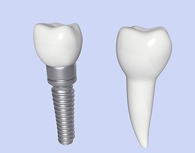 3D model Tooth Implant - premolar