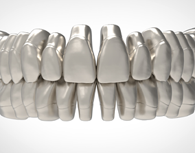 3D print model Teeth Anatomy Library with Thimble Crowns -