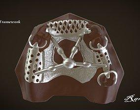 Digital Removable Partial Denture 3D printable model